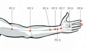 Stop headache pain on your temples by massaging acupressure points pericardium points 6 and 8
